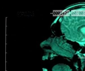 Music Video Features MRI Scans of a Singing Head